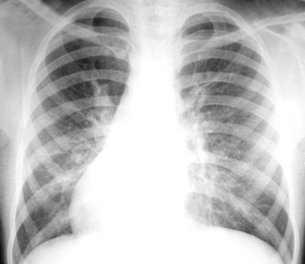 Use this to get rid of your bronchitis. Then use this Best Natural Treatment for Bronchitis in Adults once a week to prevent a chest infection from coming back.