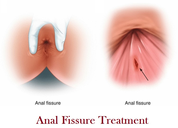 Anal Fissure Treatment