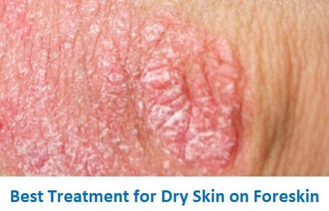 Dry Penis Skin