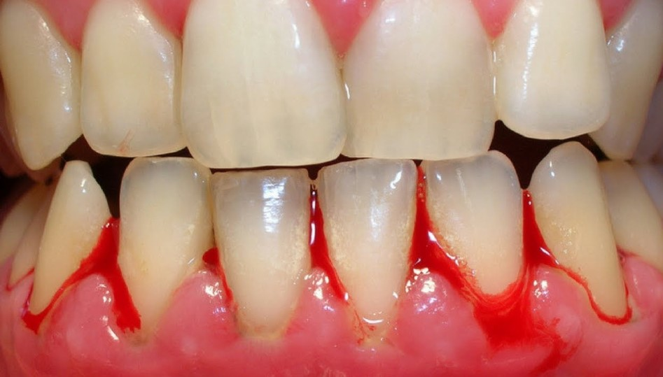 how to cure gum disease without a dentist