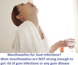 Natural Remedies for Gum Disease