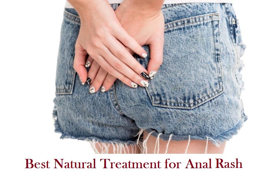 Anal Rash Treatment