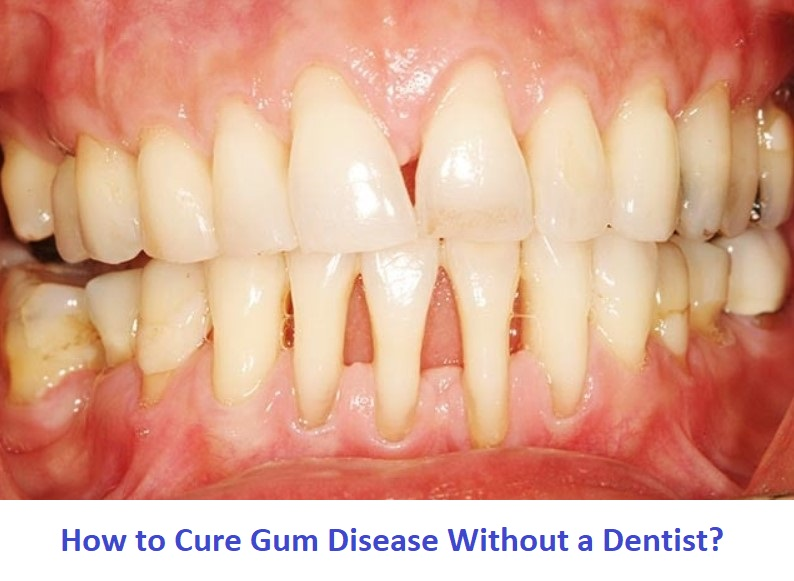 how to treat gum problems