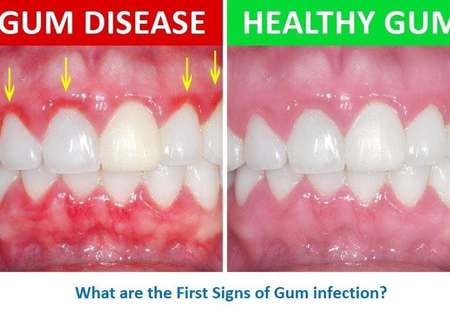 How to Cure Gum Disease Without a Dentist, Cure Gum Disease, gum disease treatment cost, gum disease treatment, gum disease treatment natural remedies, how to treat gum disease at home, gum disease symptoms, gum disease natural cure, gum disease remedy,